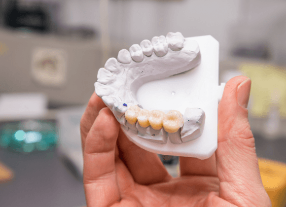 hand holding model smile with dental implants