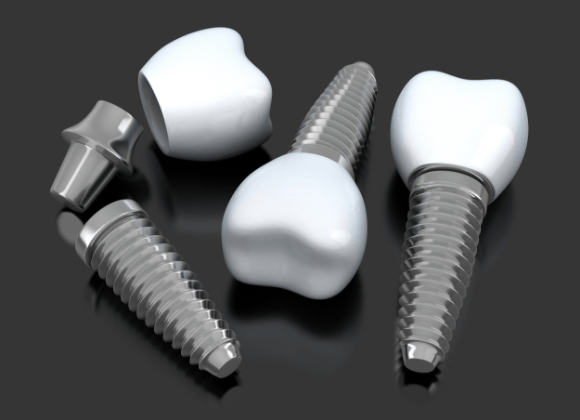 three screw in implants