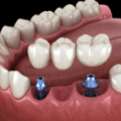 implant supported fixed bridge