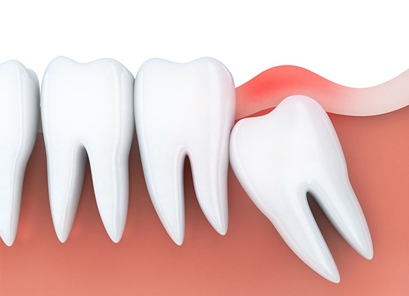 Animation of impacted teeth