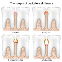 Illustration of the stages of gum disease