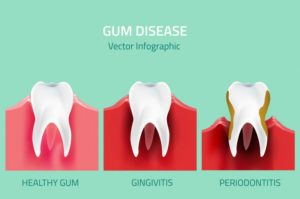 infographic of the two stages of gum disease in Waverly